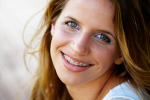 What does my orthodontist in Pittsburgh have you say about metal vs. clear braces?