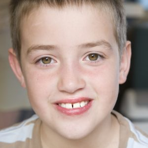 Schedule pre-orthodontic observation appointments with South Hills of Pittsburgh orthodontist Dr. Cartwright.