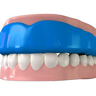 animation of mouthguard on top teeth
