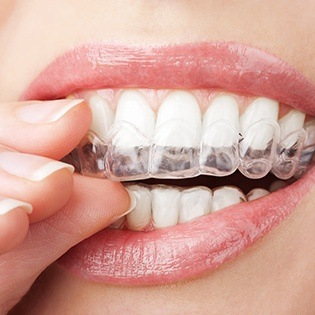 Closeup of woman placing clear aligner