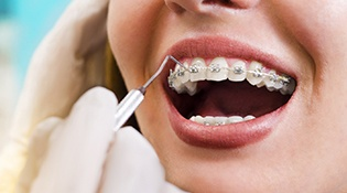 An up-close view of a patient wearing traditional braces and having their fixtures checked by an orthodontist