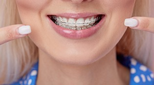 An up-close look at a young female's mouth who has clear ceramic braces and who is pointing to her smile