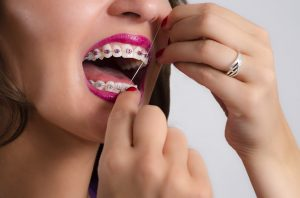 woman smiling braces flossing