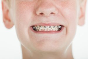 girl smiling while wearing braces